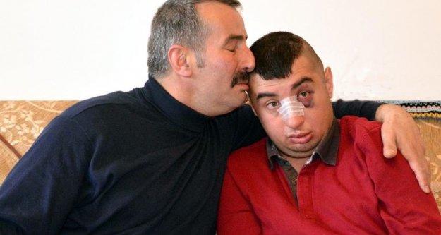Vicdansızlar,zihinsel engelli genci dövdüler