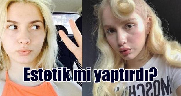 Aleyna Tilki, dudaklarına estetik mi yaptırdı?