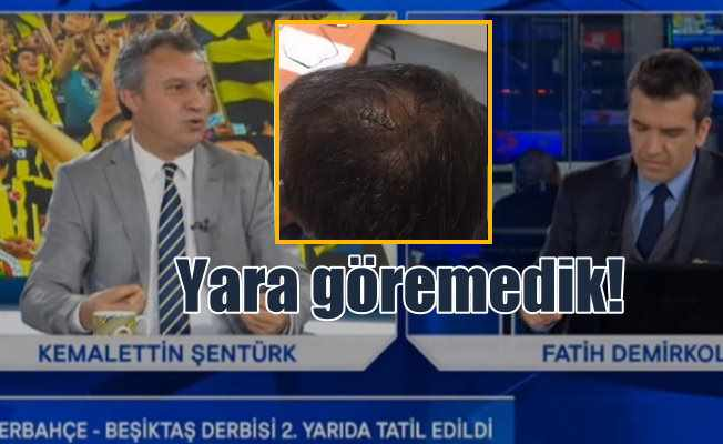FB TV'den skandal iddia; Şenol Güneş'in başında yara göremedik
