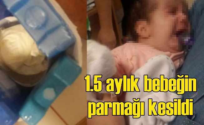 Hastanede bebeğin parmağı yanlışlıkla kesildi