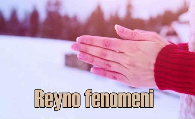Soğuk havalardaki kabus: Reyno fenomeni