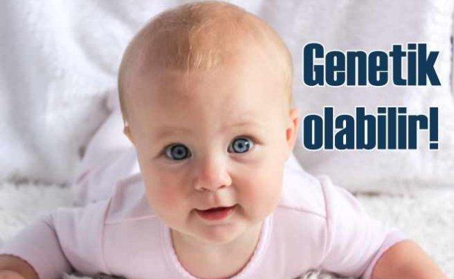Uzmanından uyarı   Şaşılık genetik olabilir