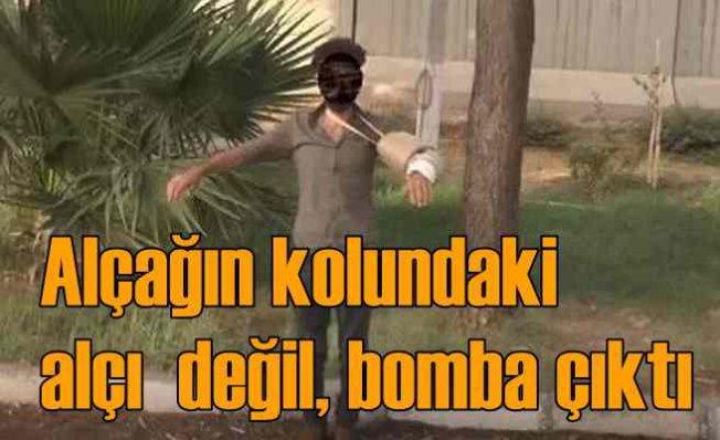 Mardin'de PKK bombacısı yakalandı | Alçılı kolda alçak tuzak