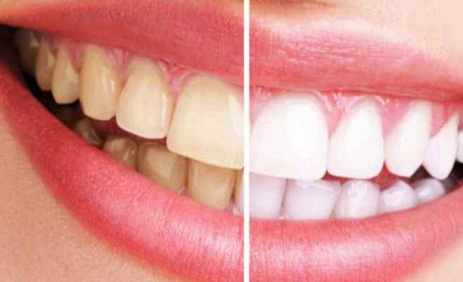 İzmir En Yeni Diş Tedavi Uygulamaları Ve Fiyatları