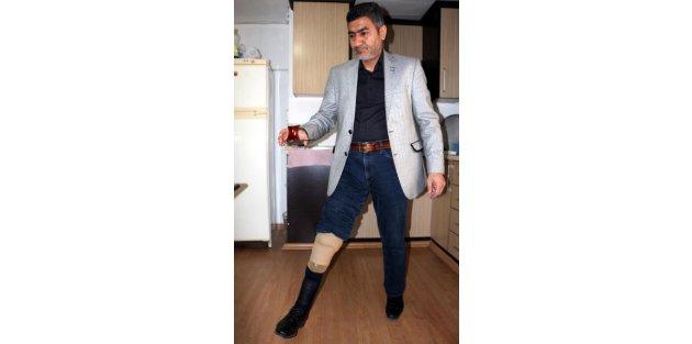 Gaziye protez bacak icrası şoku