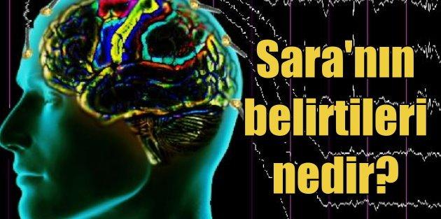 Sara nedir? Epilepsi'nin tedavisi var mı? Sara nasıl anlaşılır?