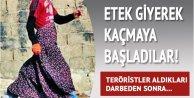 PKK'nın ünlü etek taktiği; Çatışmadan etek giyip kaçıyorlar