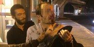 TÜBİTAK Uzmanı taciz iddiasıyla metrobüste darp edildi