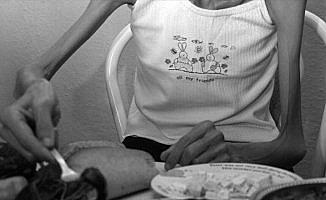 'Anoreksiya sonu ölümle bitebilen bir hastalıktır'
