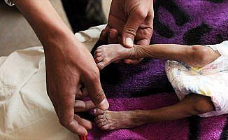 Yemen ablukası üçüncü haftasında