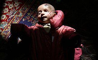 Doğu Guta ablukasının simgesi Kerim bebek Türkiye'de