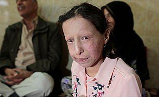 Nadir hastalığa yakalanan Suriyeli Zeve kardeşi gibi ölmek istemiyor