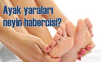 Ayağınızdaki yarayı küçümsemeyin: Diyabet uyarısı ayaktan gelebilir