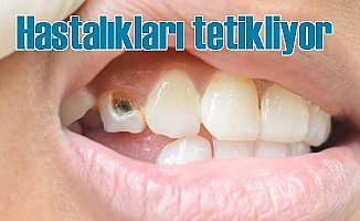 Sağlık Sorunlarınızın Nedeni Dişleriniz Olabilir