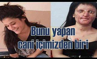 Berfin Özek'in yüzü eski haline dönecek mi?