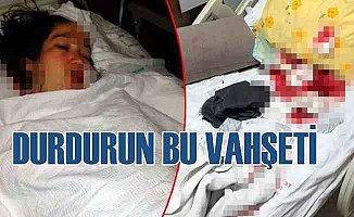 Böyle canilik görülmedi, doğum yapan eşini hastanede bıçakladı