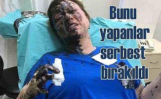 Kadına kimyasal madde ile saldıranlar serbest bırakıldı