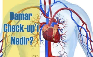 Damar Check-up'ı Nedir?