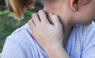 Kaşıntı deyip geçmeyin, Atopik Dermatit son yıllarda hızla artıyor