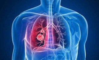 En sık rastlanan akciğer hastalığı |KOAH