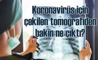Koronavirüs için çekilen tomoğrafilerden gizli kanser çıktı!