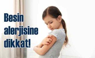 Bebeklerde besin alerjsi | Besin alerjisi nedenleri | Besin alerjisi nedir?
