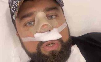 Yasin Obuz, Ferhat İlen'e burnunu yaptırdı