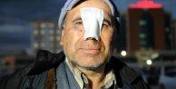 5 hastane dolaştı ama burnundaki yaraya dikiş attıramadı