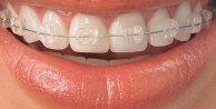 Diş teli kullananlar nelere dikkat etmeli