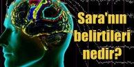 Sara nedir? Epilepsinin tedavisi var mı? Sara nasıl anlaşılır?