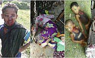 ERC Sözcüsü Dr. Schug: Arakan'da 3 günde 2 ila 3 bin arası Müslüman katledildi